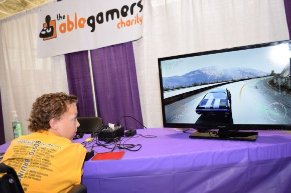 Boy with no arms playing a racing game